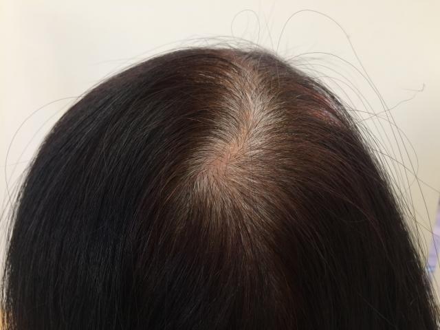 【Q&A】セルフで白髪染めをムラなく染めるコツは・・・?