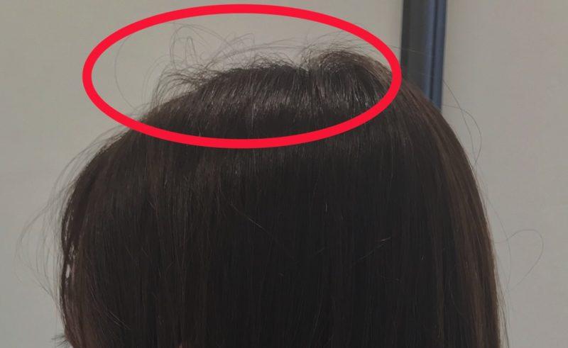【QandA】アホ毛が気になります。切ったらなくなりますか?【@原宿】